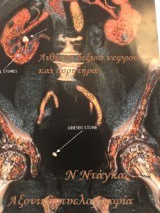 Δεξιά νεφρολιθίαση και λιθίαση ουρητήρα